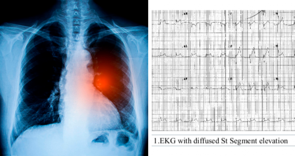 Chest pain in a 22-year-old person peaks at a diagnosis of lung cancer