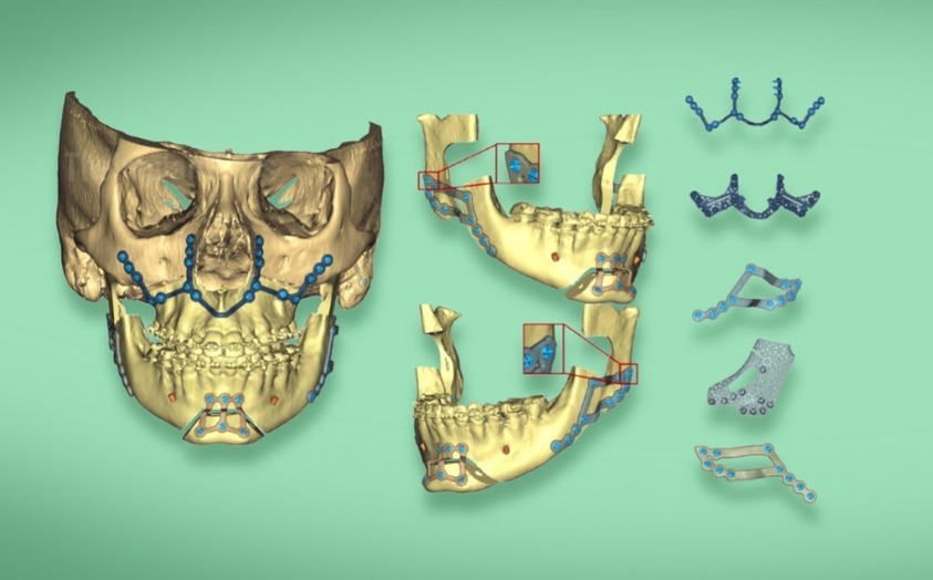 3D Reconstruction of the lower jaw, future medicine