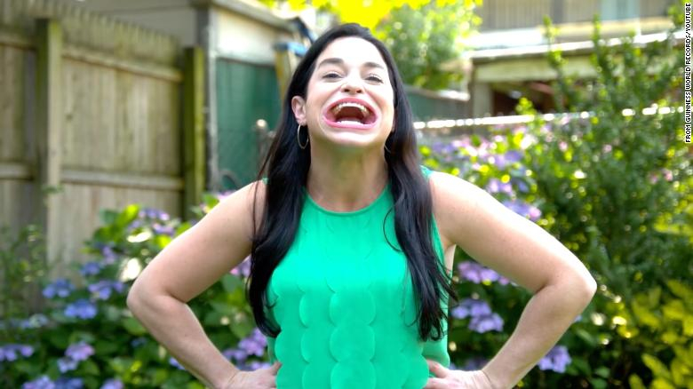According to the Guinness Book of World Records, this woman has the largest mouth in the world